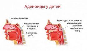 аденоидит у детей симптомы